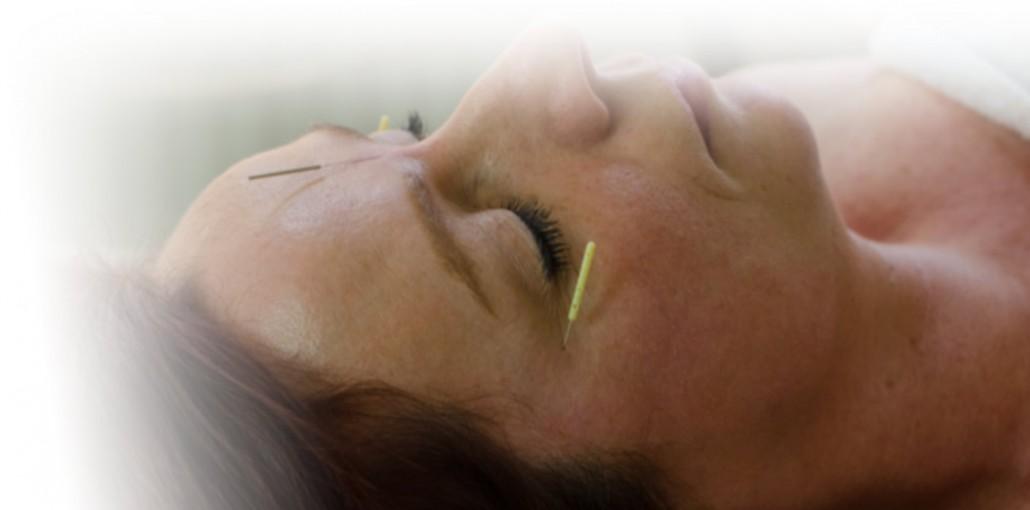 acupunctuurpunten